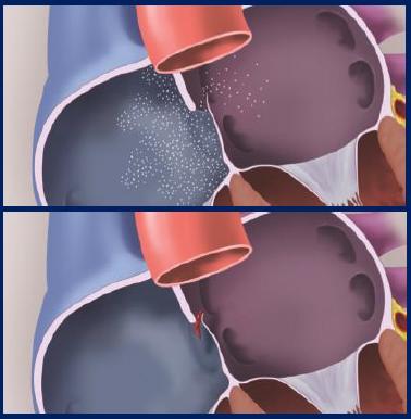 卵円孔開存症治療